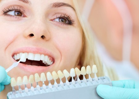 Teeth Whitening treatment in Javea - Javea dentist