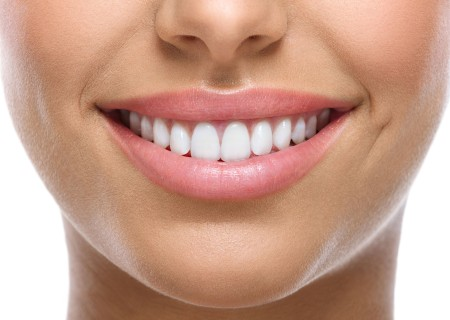 Veneers in Javea - Your dentist in Javea
