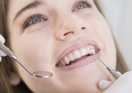 White fillings in Javea - Your dentist in Javea