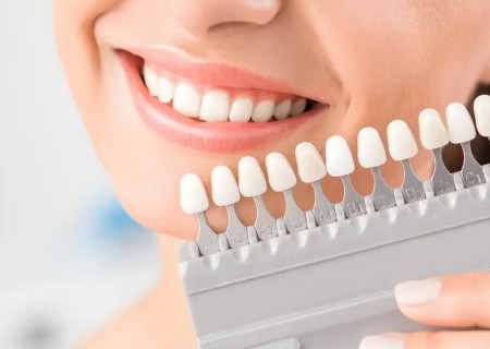 Whiten my teeth - Dentist in Javea